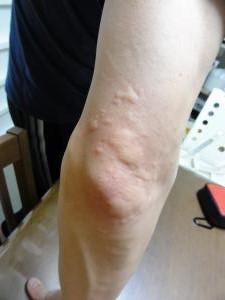 海老アレルギー