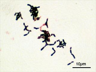 s-Bifidobacterium_adolescentis_Gram.jpg