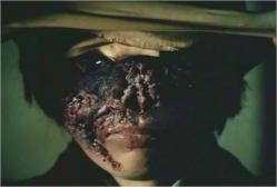 仮面の下の焼けただれた顔