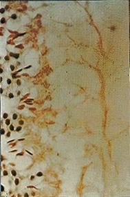 (1)は正常な精子。(2)は7日間、背中に0.25mlのABSをぬったマウスの精子。
