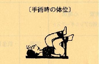 090924 川堀病院説明 手術体位