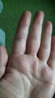 左示指手掌側