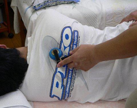 肩甲骨の内縁の治療