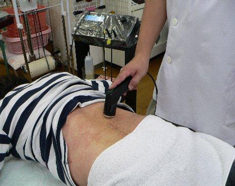 中畑さんの腰部を超音波で治療