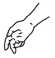 正中神経麻痺 猿手