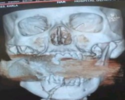 Miracle of woman who had a LIVE grenade lodged in her face