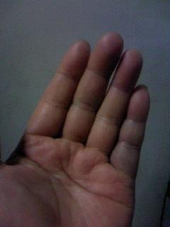 突き指した左手!