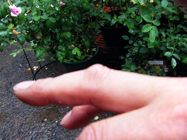 指をやられました!!。