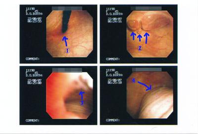 ふーふーあびあび 膀胱鏡検査。