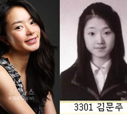 韓国俳優 整形