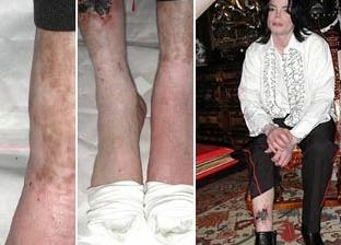 mj_depigmentation.jpeg