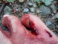 血だらけの足