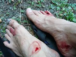 血だらけの両足