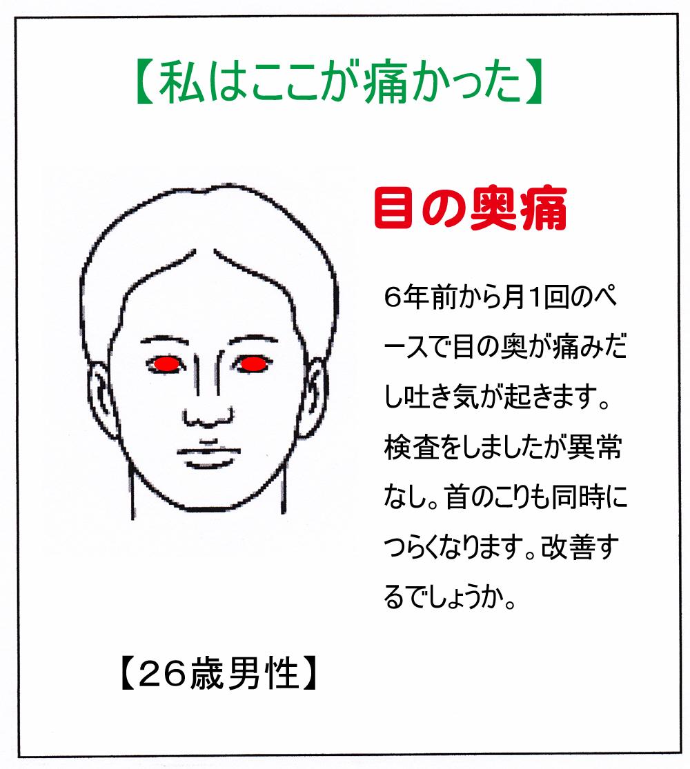 (目の奥痛)