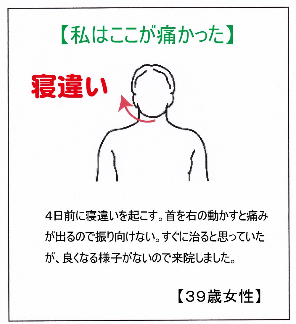 (寝違い)