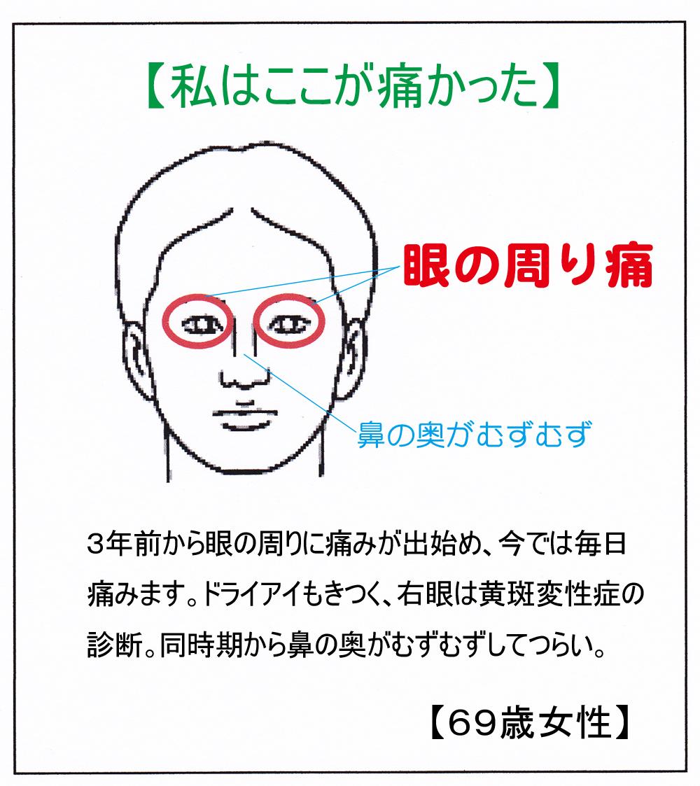 (眼の周り)