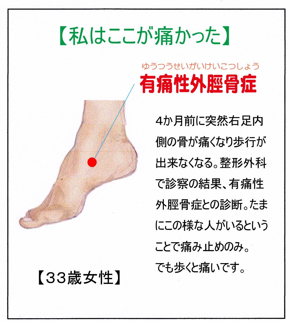 (有痛性外脛骨症)