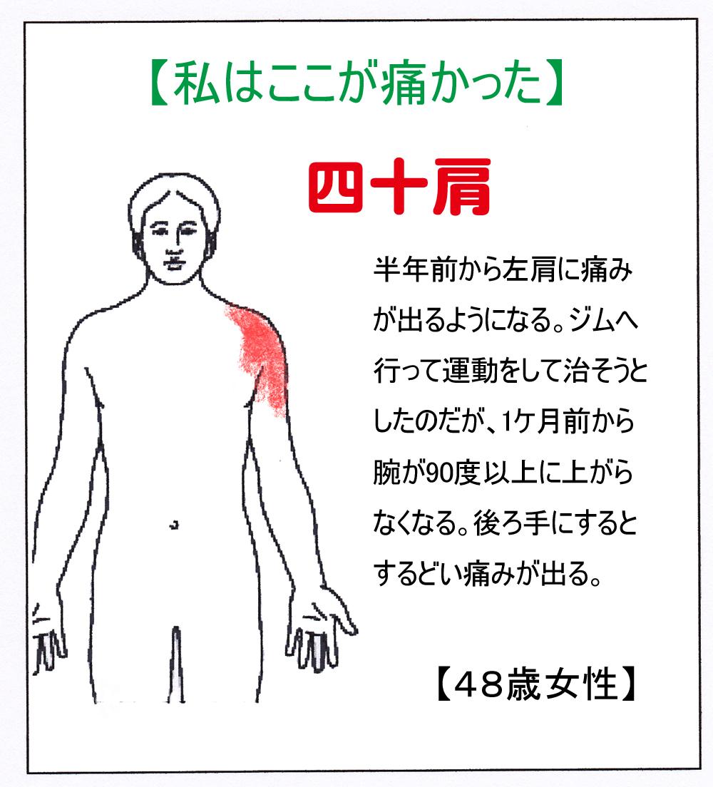 YK(四十肩)