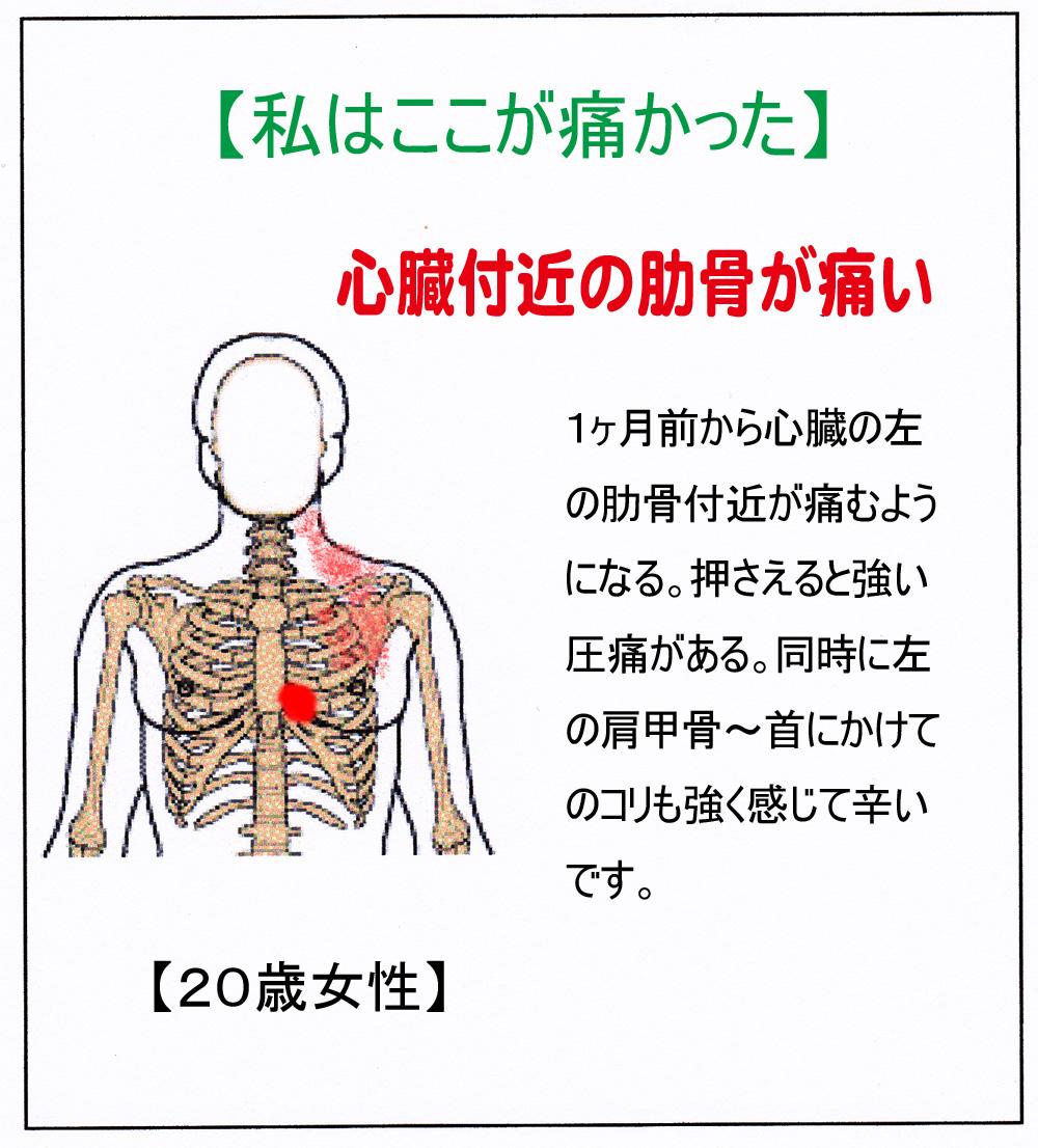 TY(胸痛)