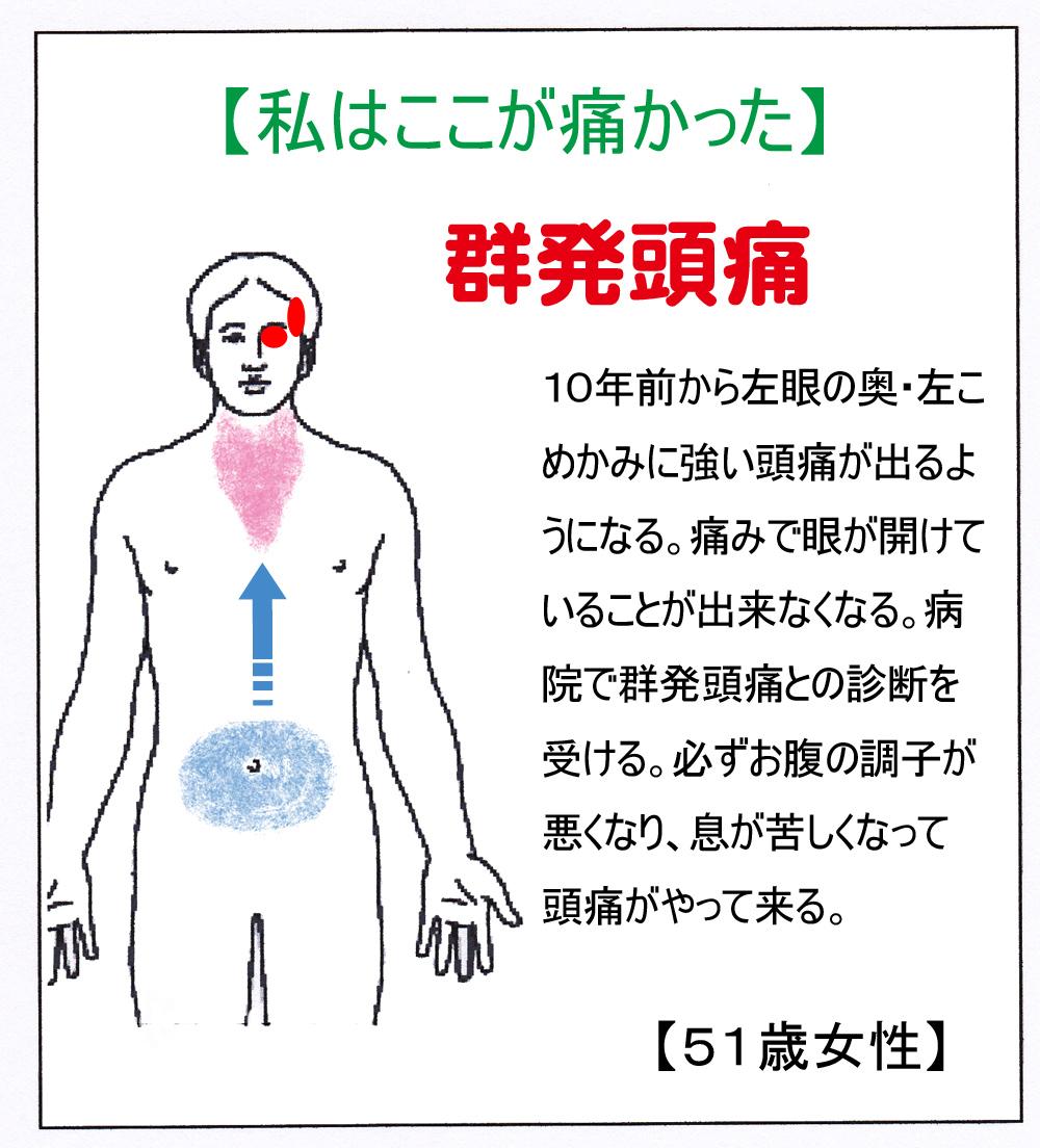 IN(群発)