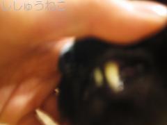jack歯