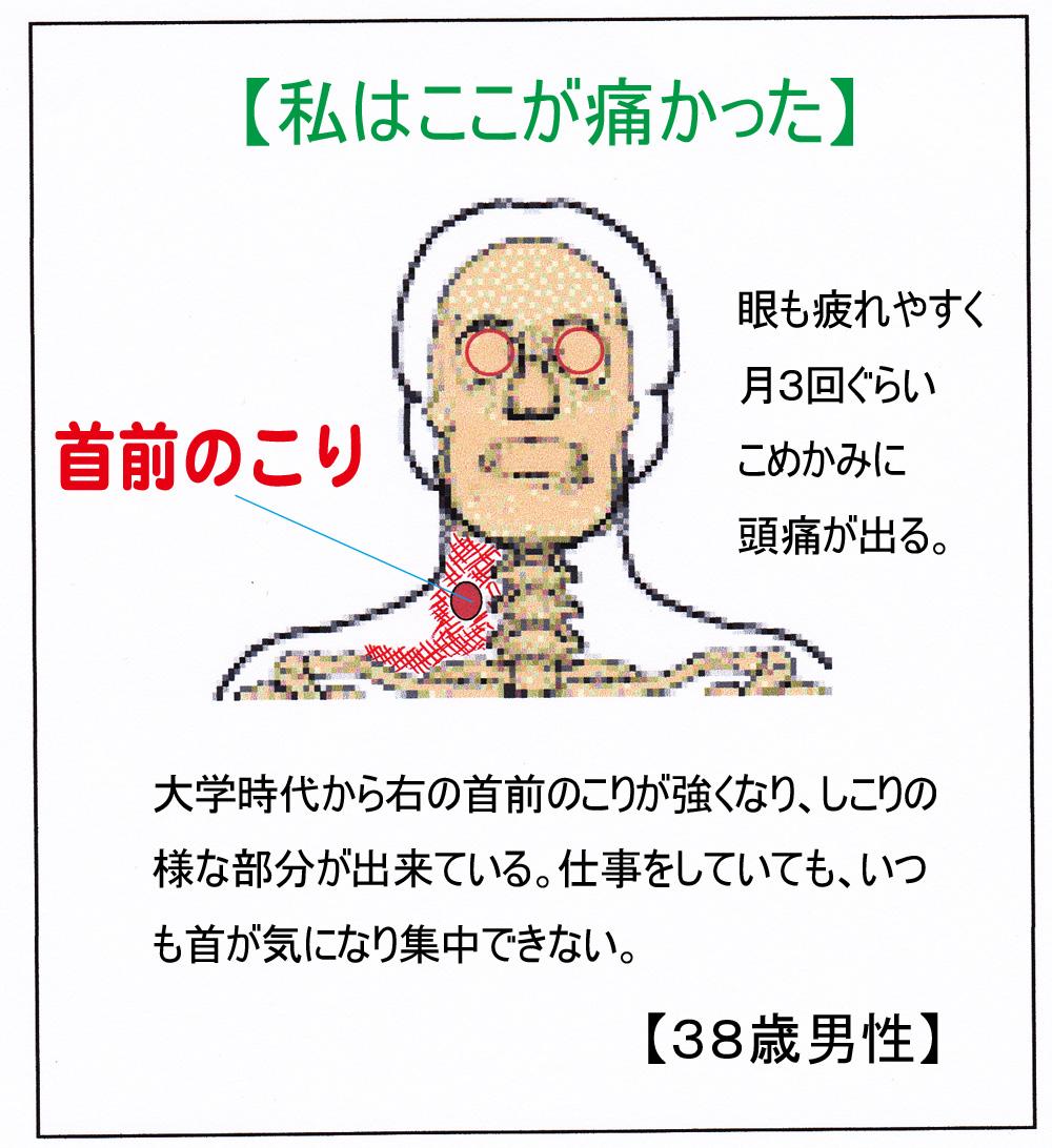 首痛:首のこりがつらい - 頭痛解消ブログ