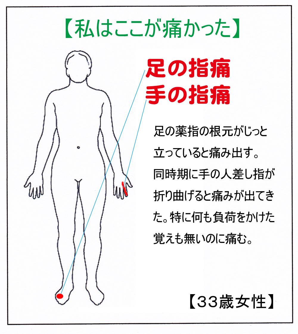 MM(指痛)