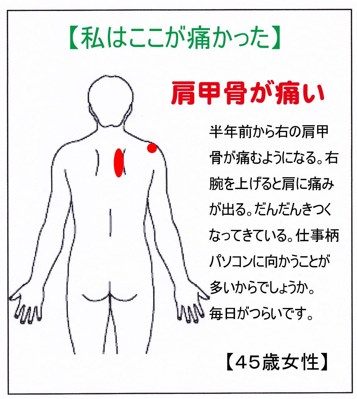 痛み 右側 の 背中 下 肩 甲骨 の