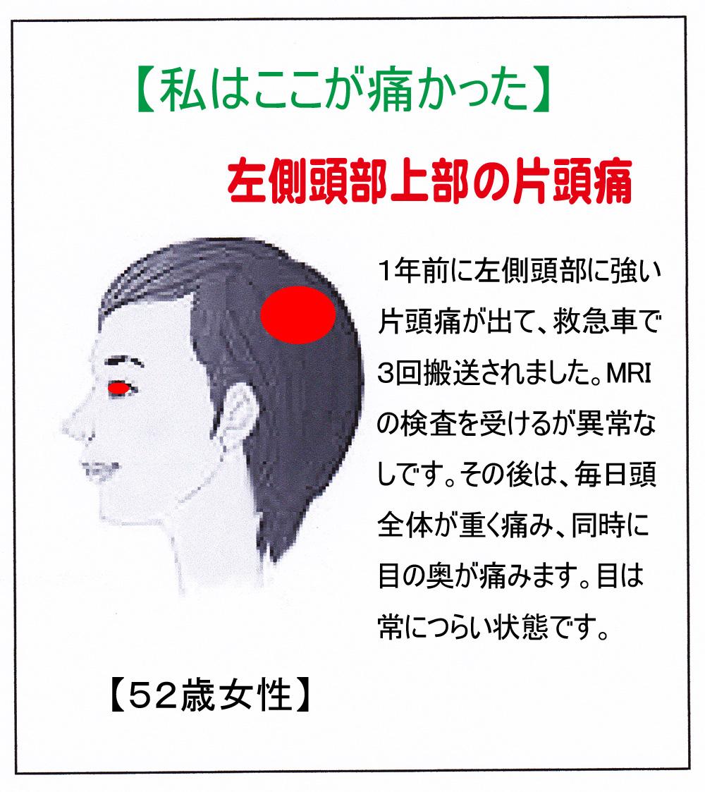 側頭部の片頭痛 - 頭痛解消ブログ