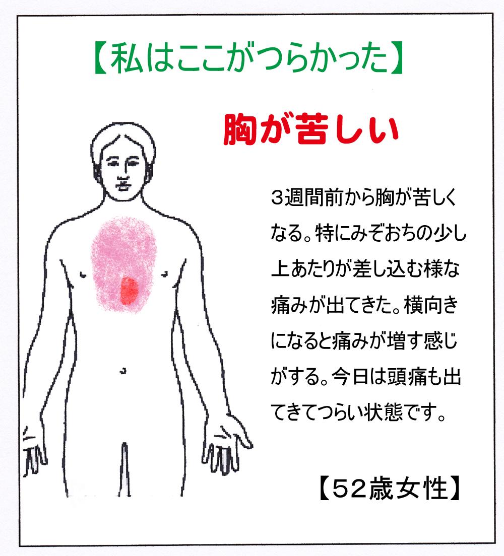 ST(胸痛)