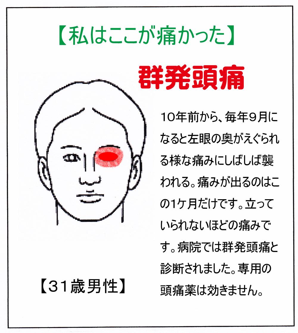 MR(頭痛)