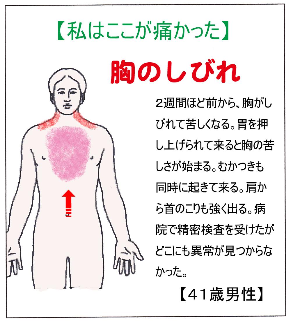 SN(胸)